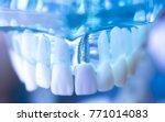 dentsts dental prosthetic teeth ...   Shutterstock . vector #771014083