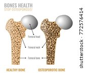osteoporosis cross section... | Shutterstock .eps vector #772576414