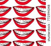 braces on teeth illustration....   Shutterstock . vector #772594348
