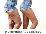 comparison of female legs... | Shutterstock . vector #773387890