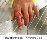 laceration wound index finger ...   Shutterstock . vector #774498733