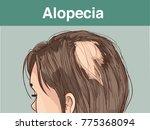 vector illustration of afemale ... | Shutterstock .eps vector #775368094