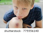 closeup of injured young kid's... | Shutterstock . vector #775556140