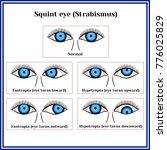 squint eye  strabismus .... | Shutterstock .eps vector #776025829