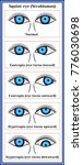 squint eye  strabismus .... | Shutterstock .eps vector #776030698