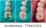 Small photo of Natural looking dental filling before and after series - rebuilding function and aesthetics.