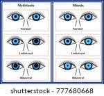 mydriasis   expansion of a... | Shutterstock .eps vector #777680668