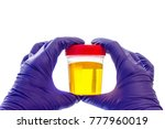 urine specimen  medical... | Shutterstock . vector #777960019