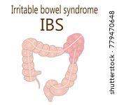irritable bowel syndrome  ibs ... | Shutterstock .eps vector #779470648