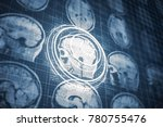 close up series of a ct scan... | Shutterstock . vector #780755476