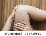 varicose veins on the womans leg | Shutterstock . vector #783719560