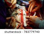 human heart during cardiac...   Shutterstock . vector #783779740