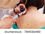the dermatologist examines the... | Shutterstock . vector #784036480