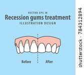 compare upper teeth recession... | Shutterstock .eps vector #784312894
