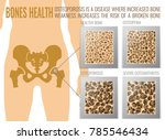 four stages of osteoporosis.... | Shutterstock .eps vector #785546434