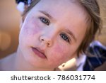 diathesis  red spots on the...   Shutterstock . vector #786031774