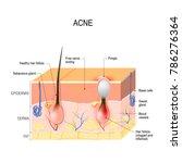 acne vulgaris or pimple.... | Shutterstock . vector #786276364