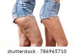 comparison of female legs...   Shutterstock . vector #786965710