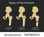 types of hip fracture. non...   Shutterstock .eps vector #789080593