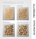 osteoporosis stages image.... | Shutterstock .eps vector #789080770
