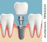 human teeth and dental implant... | Shutterstock . vector #789632224