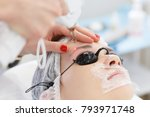 laser removal of a permanent...   Shutterstock . vector #793971748
