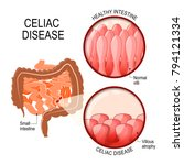 celiac disease. small... | Shutterstock .eps vector #794121334