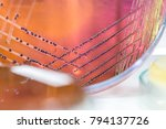 colony characteristics of... | Shutterstock . vector #794137726