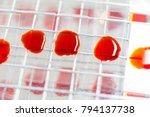 colony characteristics of... | Shutterstock . vector #794137738
