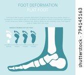 foot deformation as medical... | Shutterstock .eps vector #794145163