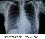 Small photo of a chest xray film of a patient with spontaneous pneumothorax, a visceral pleura is seen separated from the parietal pleura