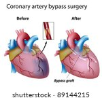 heart bypass surgery | Shutterstock .eps vector #89144215
