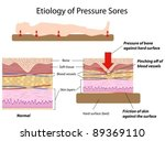 Causes of pressure sores - stock vector