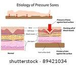 Etiology of pressure sores - stock photo