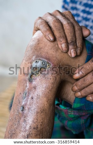 broken human thigh with steel screw inside  - stock photo