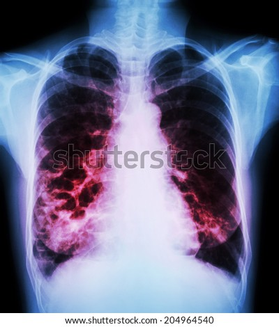 """""""Bronchiectasis""""  X-ray chest show : multiple lung bleb and cyst due to chronic infection - stock photo"""