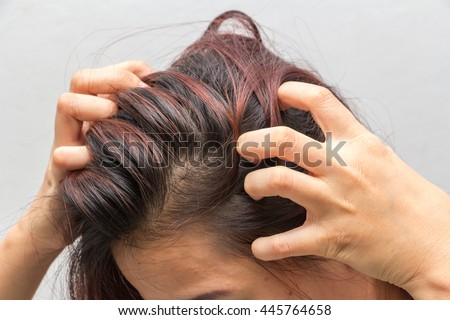 closeup, Women itching scalp