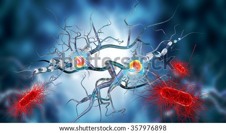 3d illustration of nerve cells, concept for Neurological Diseases, tumors and brain surgery.  - stock photo