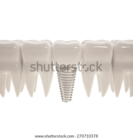 3d illustration of teeth with pin - stock photo