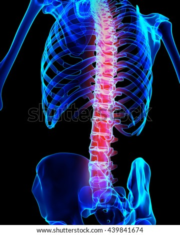 3D illustration, spine painful skeleton x-ray, medical concept. - stock photo