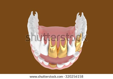 3D jaw with dental crown - stock photo