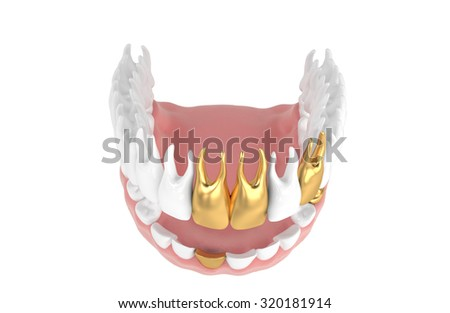 3D jaw with dental crown isolated white - stock photo