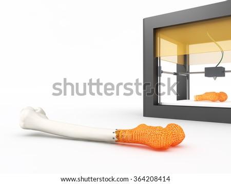 3d printed bone - stock photo