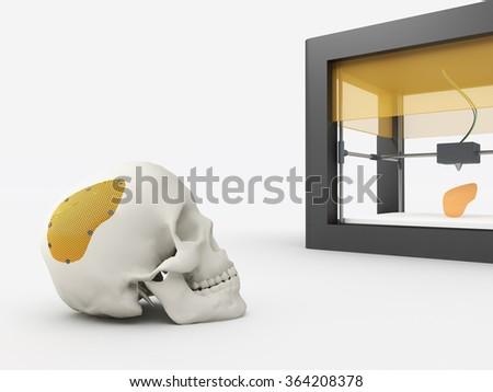 3d printed cranium - stock photo