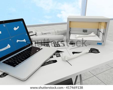 3d printed femur. 3d rendering. - stock photo