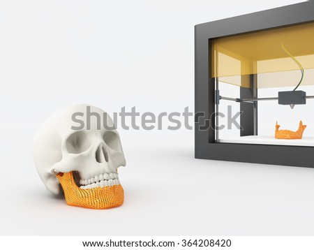 3d printed jaw - stock photo
