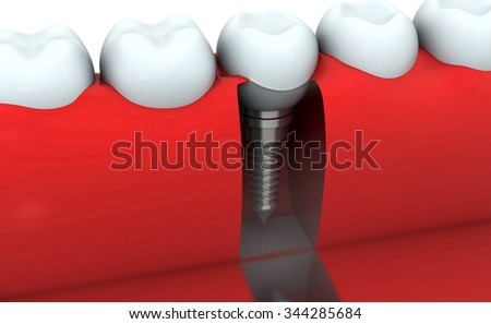 3d render of Dental implant , human Tooth - stock photo