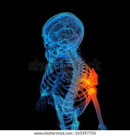 3d rendered human of shoulder pain - stock photo