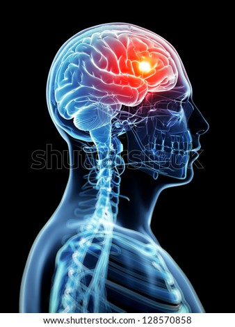 3d rendered illustration - headache - stock photo