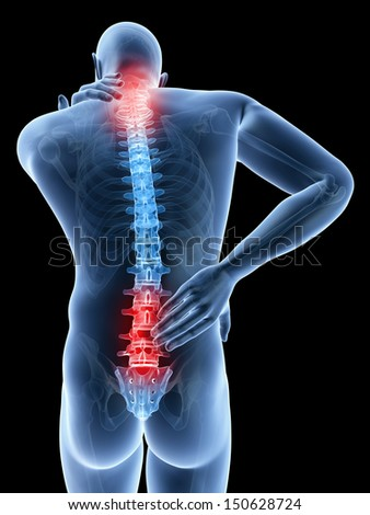 3d rendered illustration of a man having a painful back and neck - stock photo